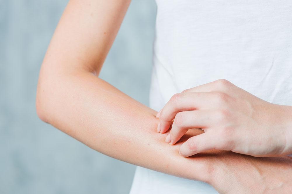 Na imagem, a metade direita do dorso de uma mulher branca está aparecendo, junto do braço do mesmo lado e a mão esquerda. A mão coça, usando as unhas, a porção do antebraço direito.