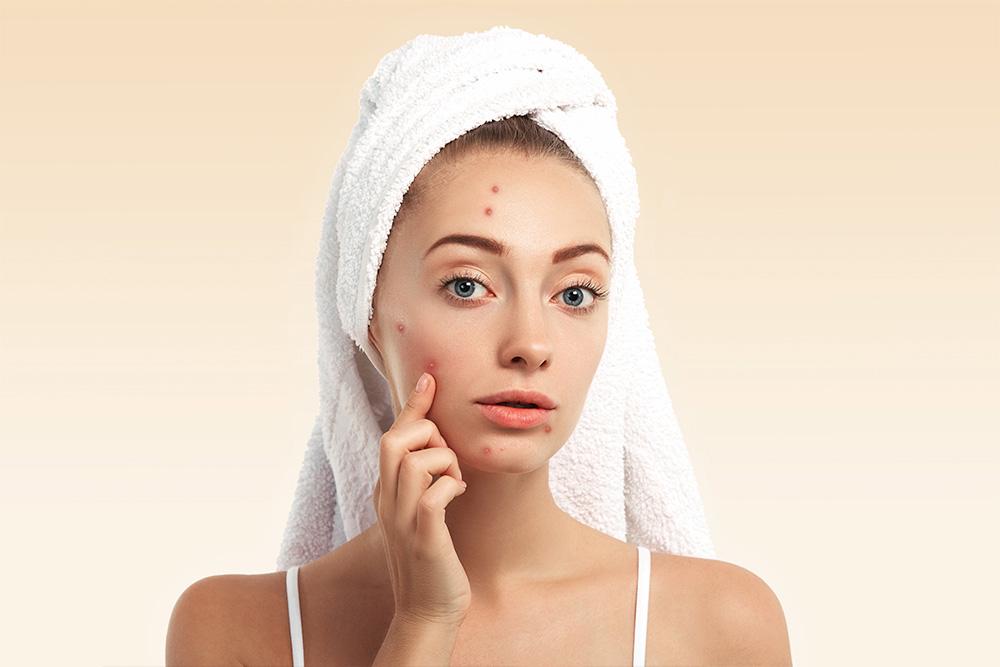 Na imagem, uma jovem mulher de pele branca e olhos azuis está com uma toalha na cabeça. Ela toca seu rosto mostrando uma de suas acnes.